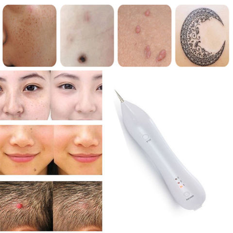 laser freckle machine skin mole removal dark stain remover wart tag tattoo removal handle home beauty care-White
