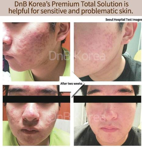 Total Skin Solution Cream-Korean